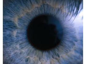 NEC glasses beam translations onto retina